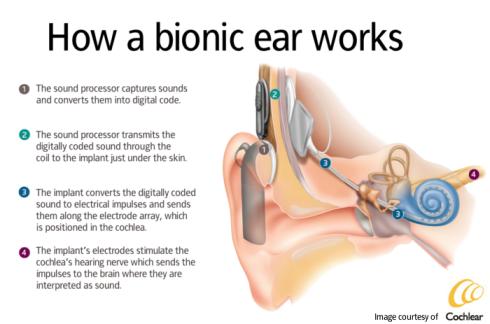 cochlear impant